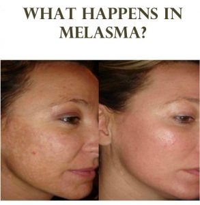 Best Melasma Treatment